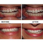 Cosmetic Fillings for Front Teeth