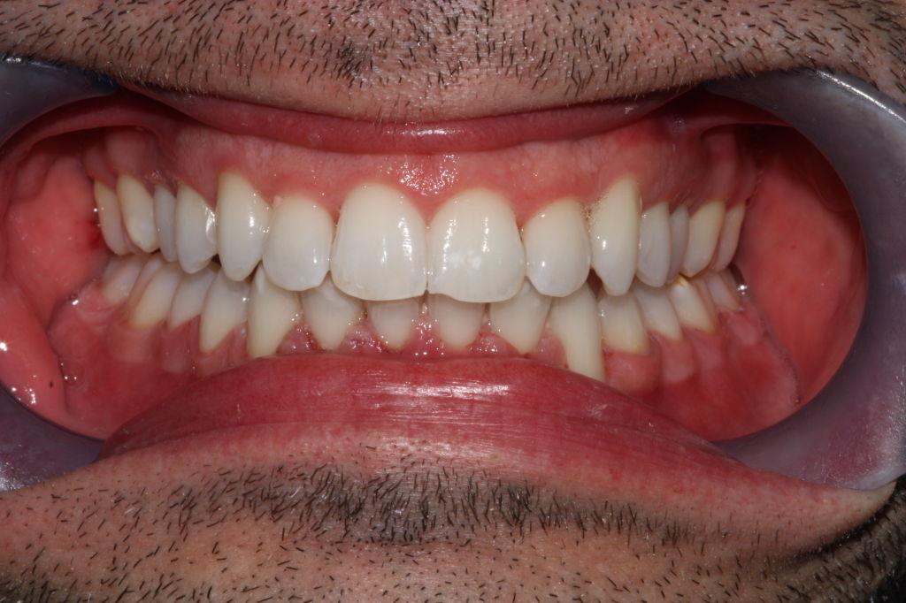 Good teeth whitener yahoo dating