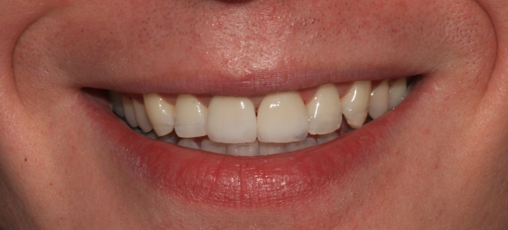 Smile Makeover Case Study