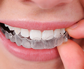 £500 Voucher to spend on Orthodontic Treatments