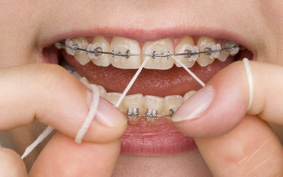 5 Top Tips to keep your teeth clean if you have braces